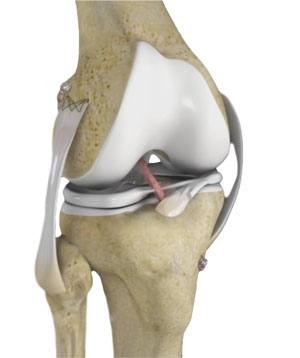 multi-ligament-knee-reconstruction