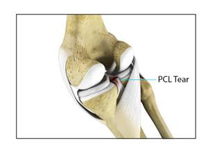 pcl-injuries